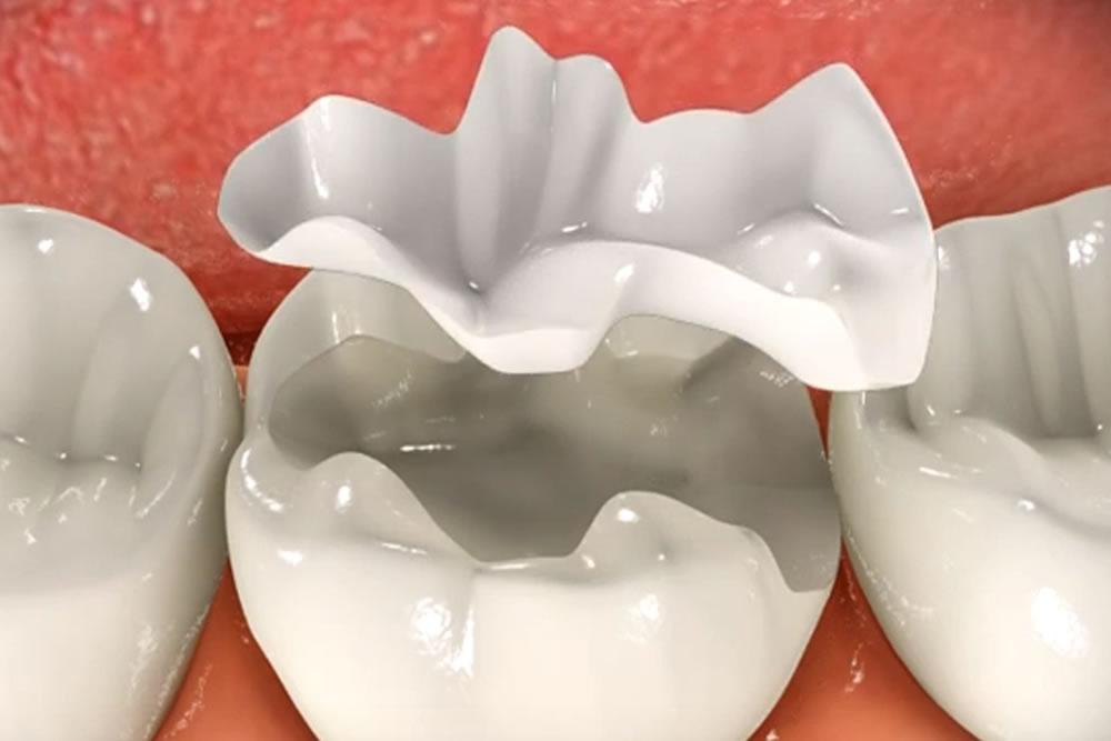 つめ物の下の虫歯(2次カリエス)