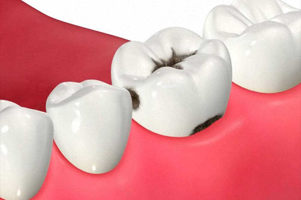 歯の隣接面の虫歯
