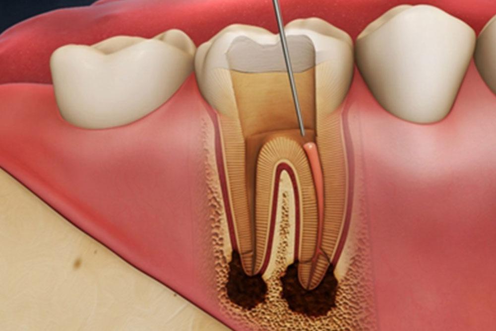 歯の根っこの虫歯