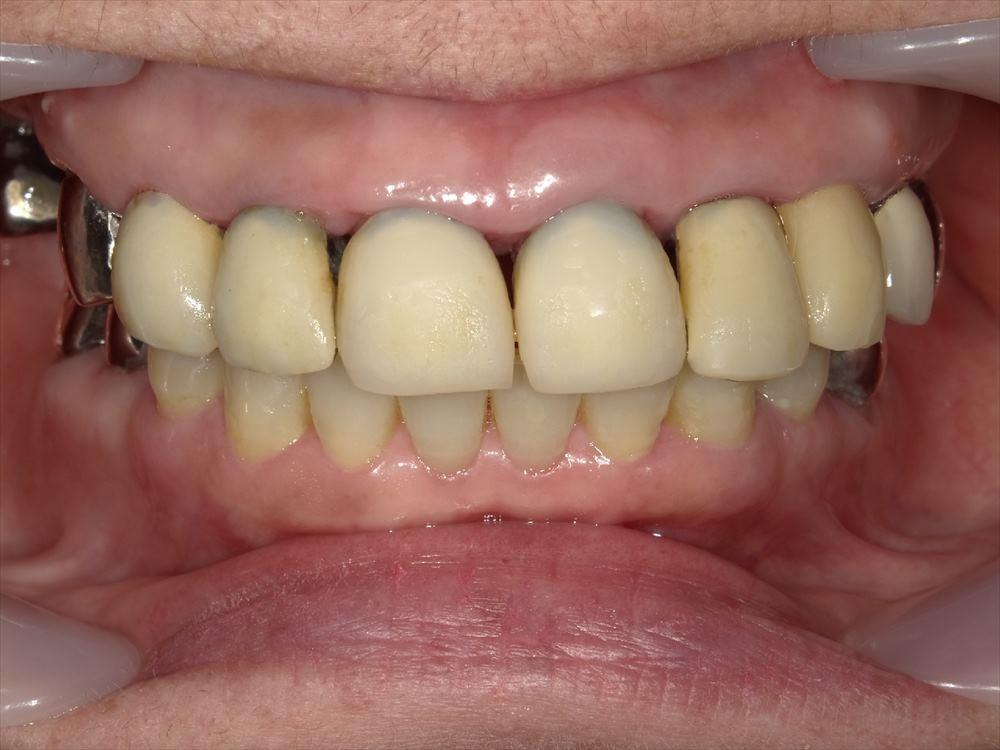 歯間乳頭歯肉が退縮した歯茎