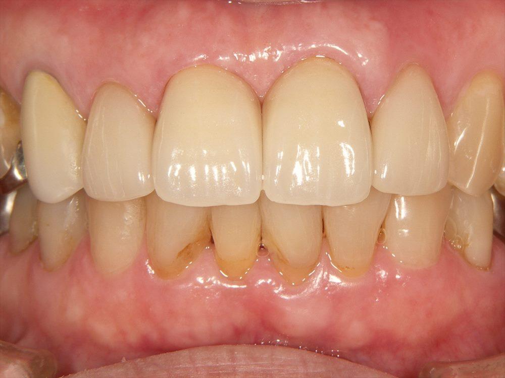 疑似歯間乳頭歯肉