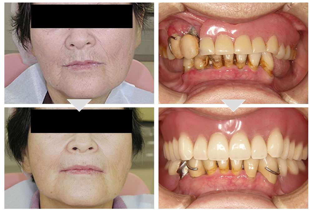 治療用入れ歯使用前後