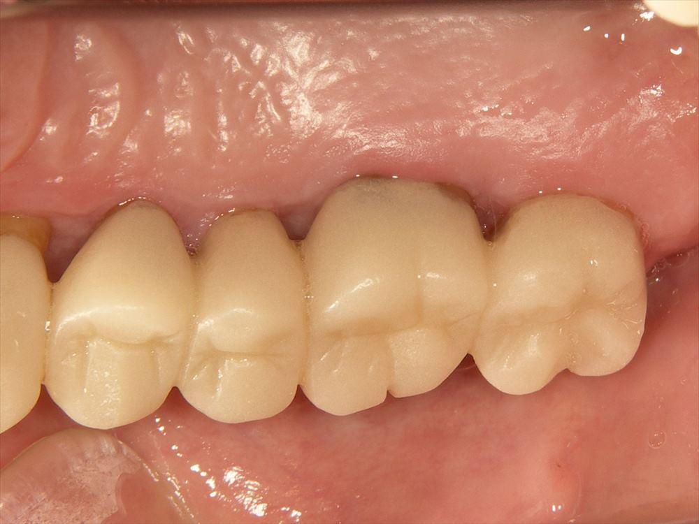 歯周病治療症例