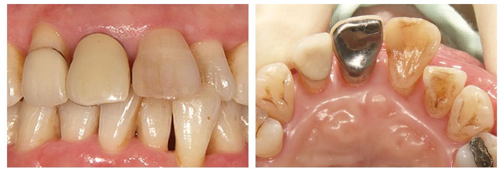 歯周外科手術4ヶ月後