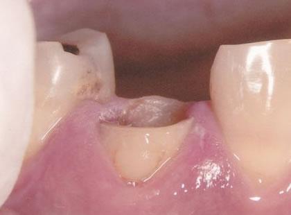 エクストルージョン法(矯正的歯の廷出)症例