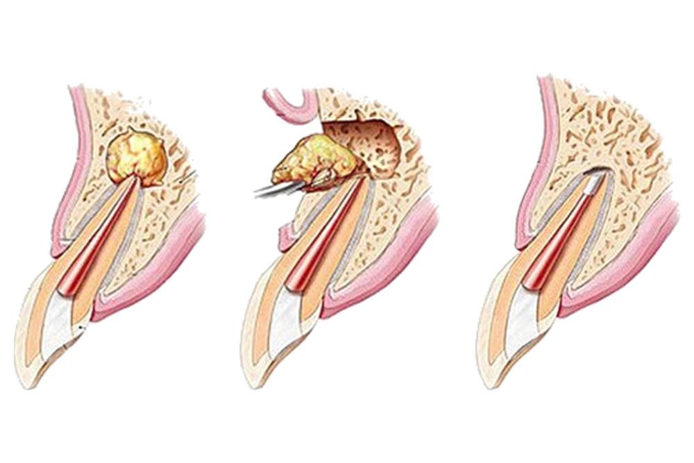 歯根端切除術に対応