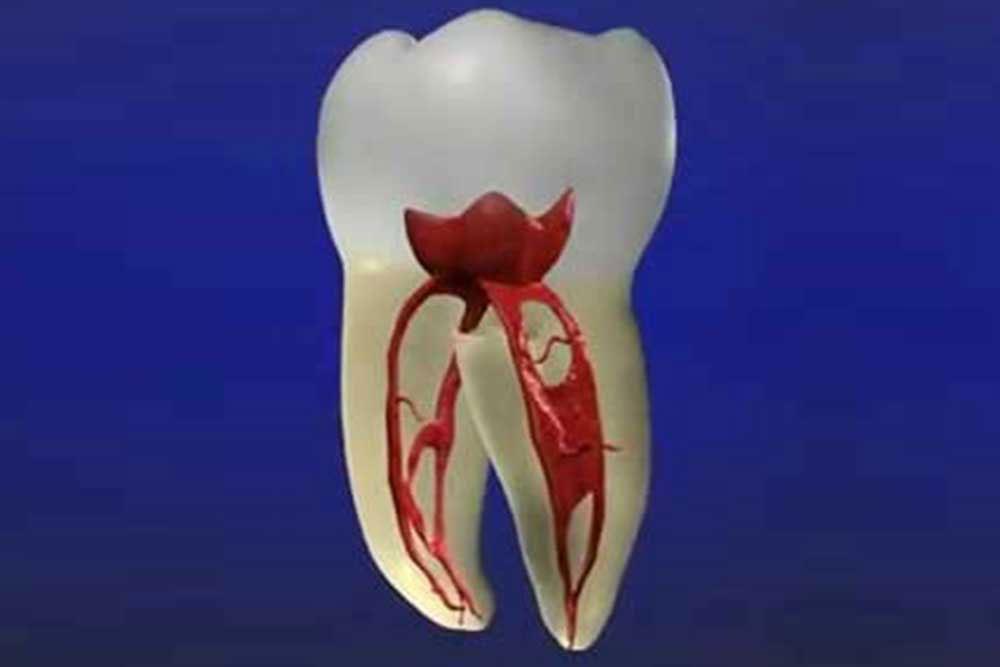虫歯の再発リスク