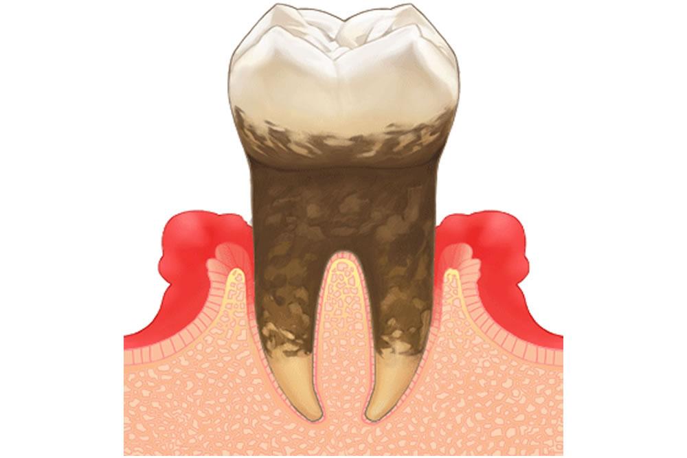 歯周病の再発リスク