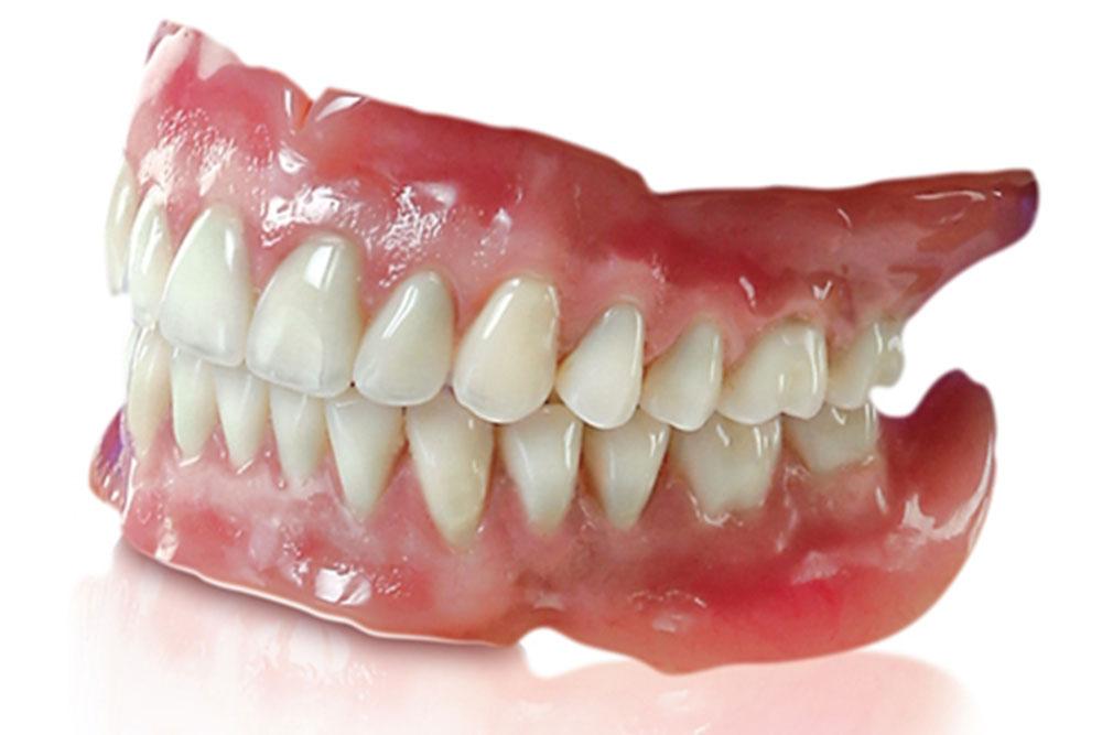 入れ歯の作り直し