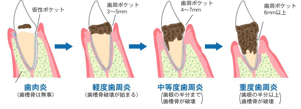 そもそも、歯周病の原因は何?