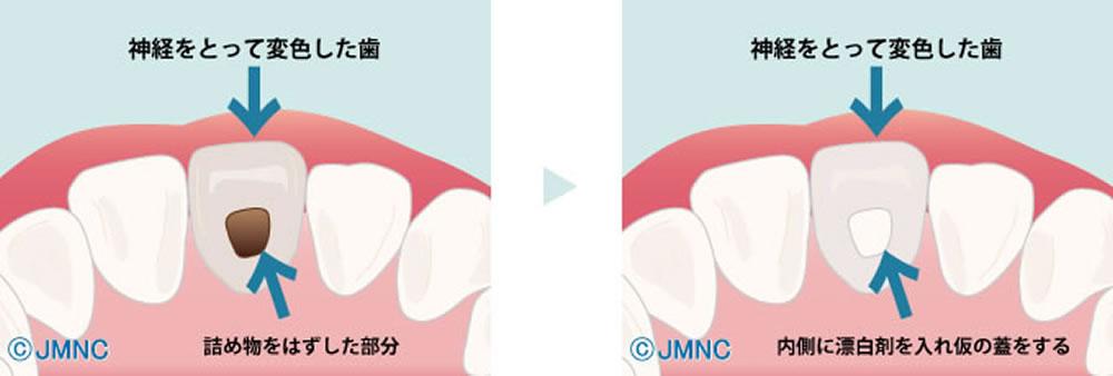 黒ずんだ歯のホワイトニング